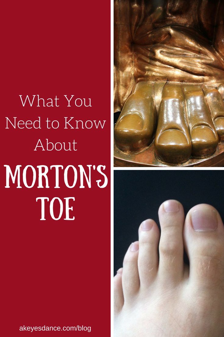 What to know about Morton's Toe blog post by Abigail Keyes
